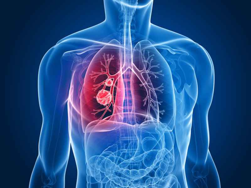 Age of Donor Affects Stem Cell Effectiveness in Repairing Lung Damage from Pulmonary Fibrosis